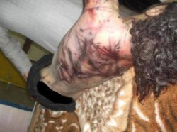 Gruesome Syria photos may prove torture by Assad regime