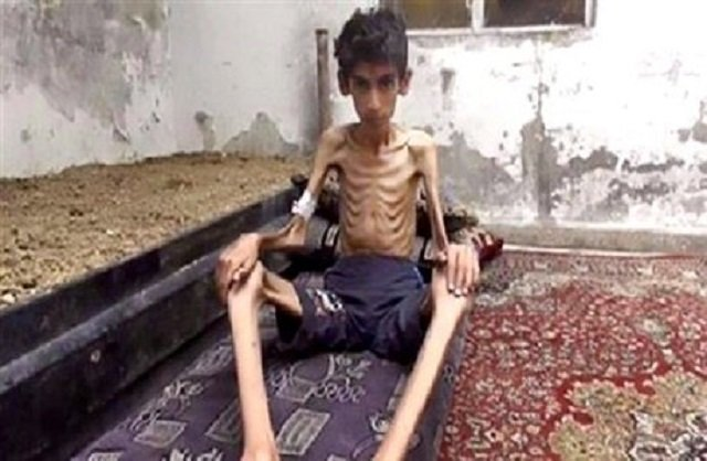 Madaya is Another Auschwitz Without the Ovens