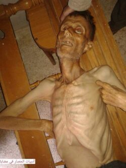 Barack Obama Is Complicit With Assad Siege of Madaya