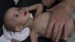 Obama is Complicit in Starving Syrian Civilians