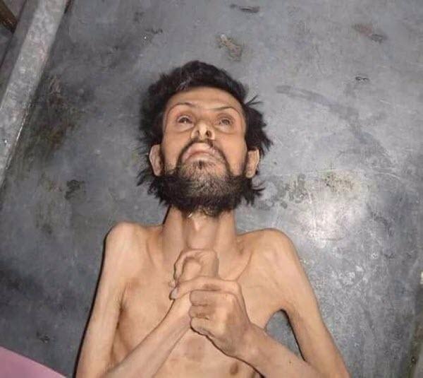 Terrorist Assad Set to Starve Aleppo With Kurdish Help