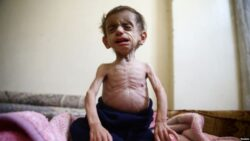 Deliberate Starvation of Civilians in Syria Could Be War Crime